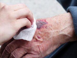Como mejorar la cicatrización de las heridas